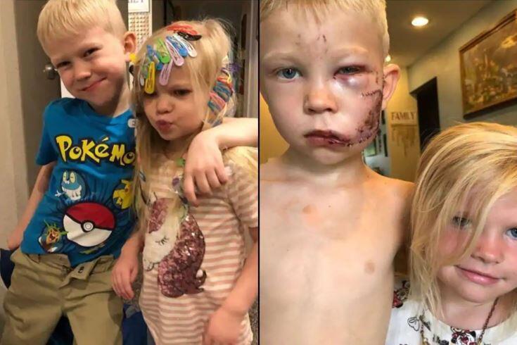 6 yaşındaki minik kahraman kardeşinin hayatını böyle kurtardı!