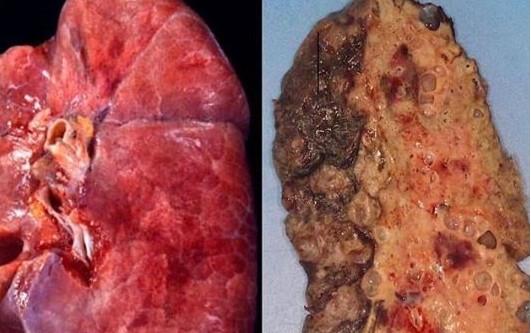 Koronavirüsün akciğerlere verdiği hasarın en net görüntüsü