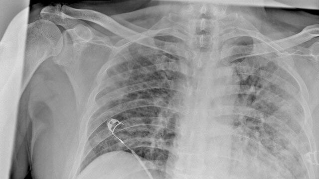 Koronavirüsün akciğerdeki ağır tahribatı tomografi görüntülerine yansıdı