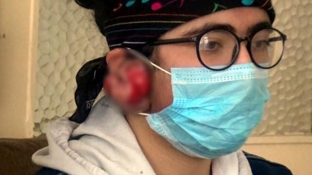 7 yaşındayken taktığı küpeler hayatını kabusa çevirdi