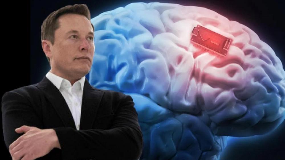 Elon Musk'tan çip projesiyle ilgili şaşkına çeviren açıklama - Resim: 1