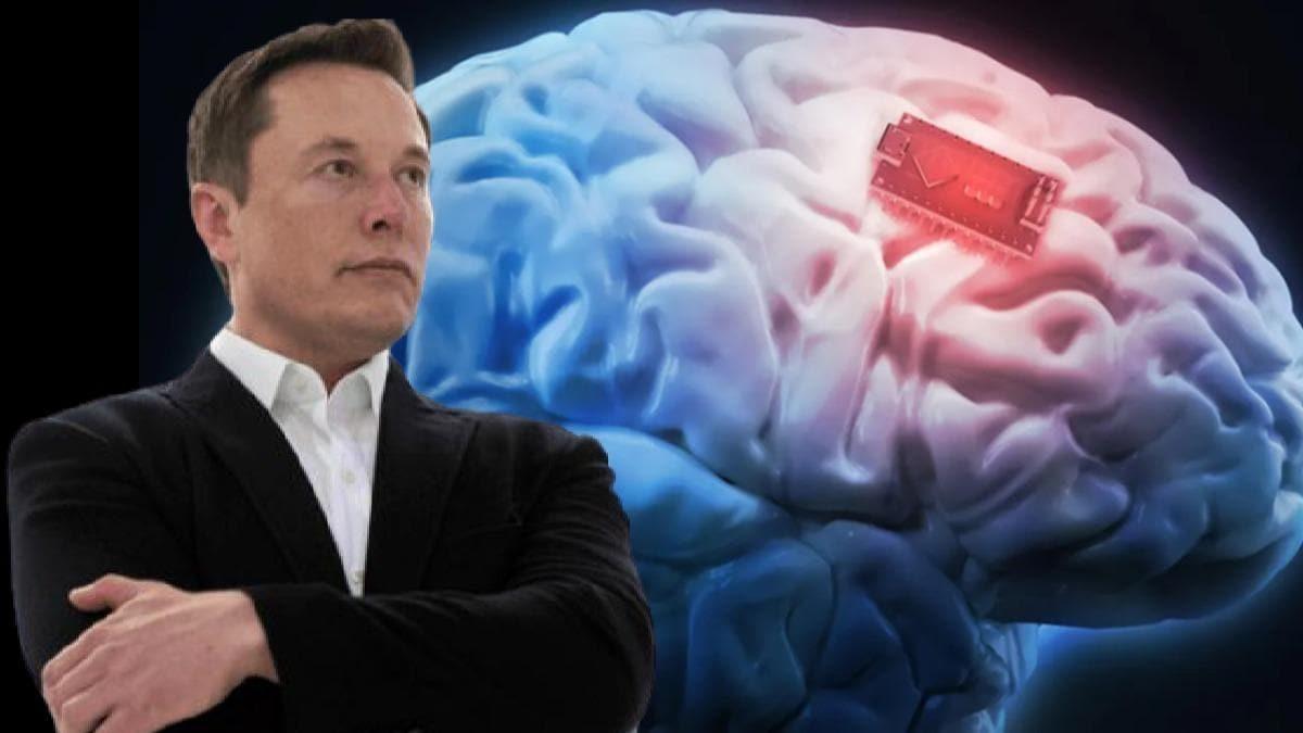 Elon Musk'tan çip projesiyle ilgili şaşkına çeviren açıklama