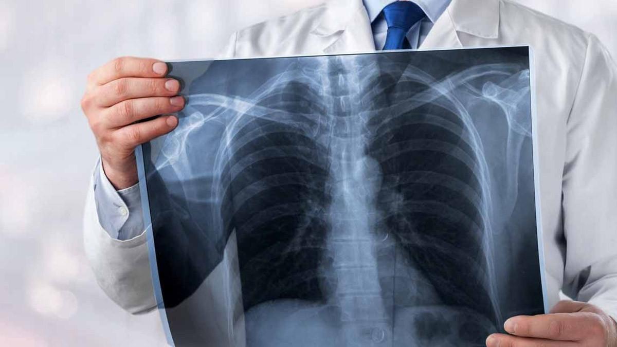 Akciğer kanseriyle ilgili sevindiren gelişme