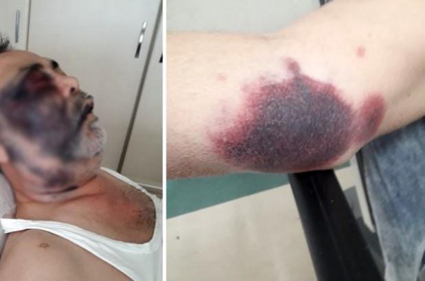 Engelli vatandaşı döve döve öldürdüler!