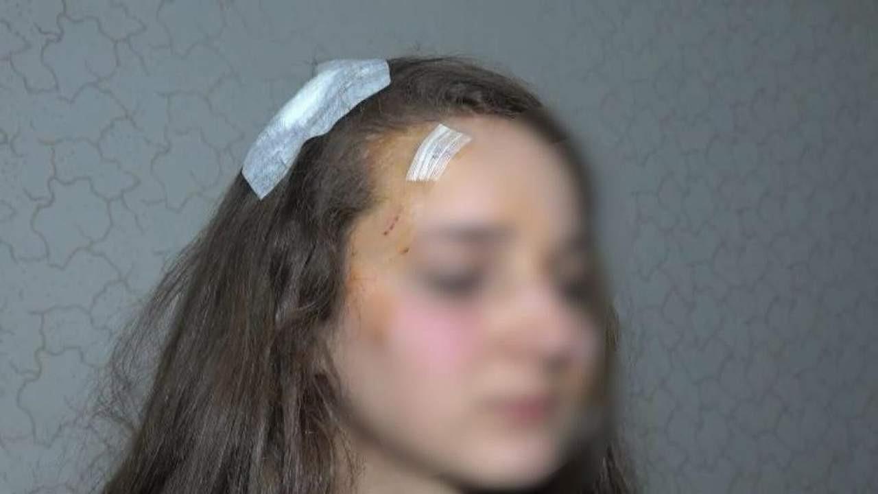 Genç kadına sokak ortasında muştalı saldırı