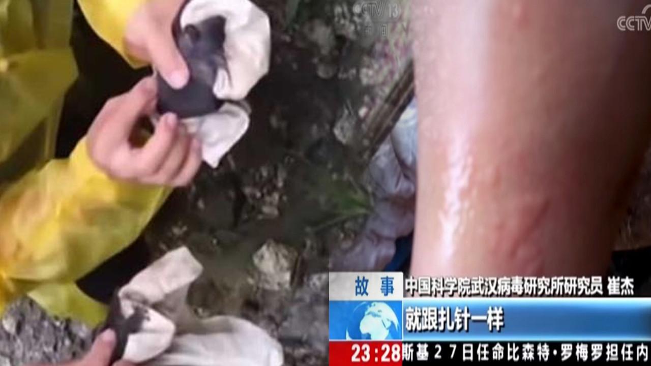 Wuhan'dan şoke eden görüntüler: Yarasaların uzmanları ısırdığı anlar kamerada