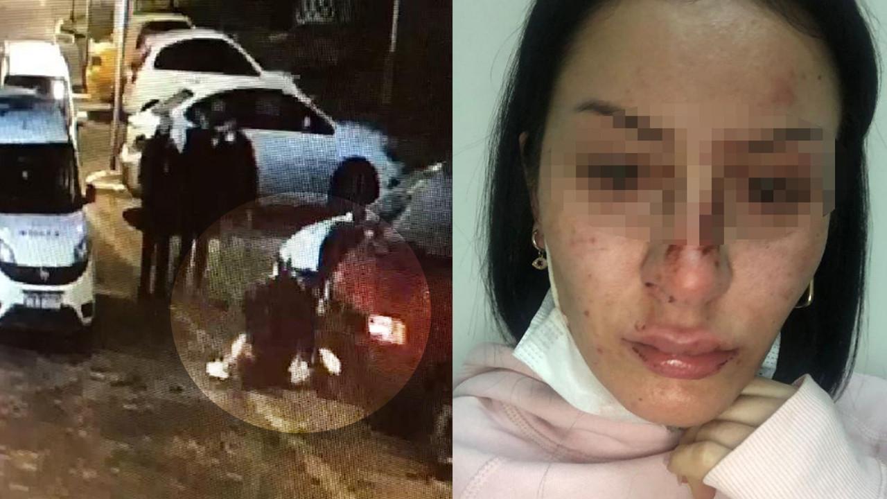 İstanbul'da genç kadına polis dayağı iddiası: ''Doktor az bile yapmışsınız dedi''