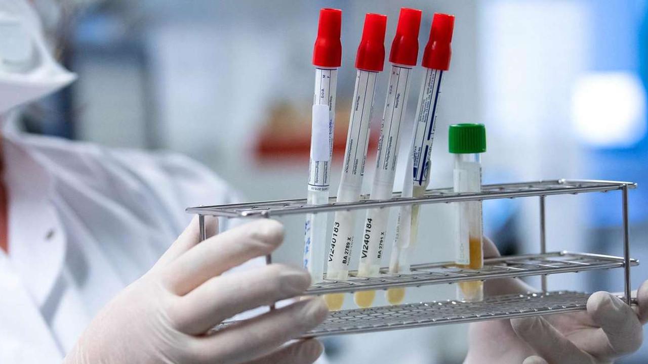 Korona virüs, HIV hastasında 32 kez mutasyona uğradı