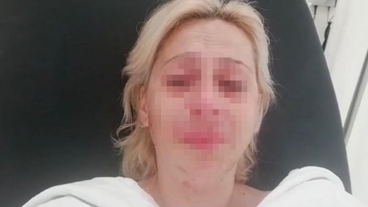 Hayvanları besleyen kadını dövdüler