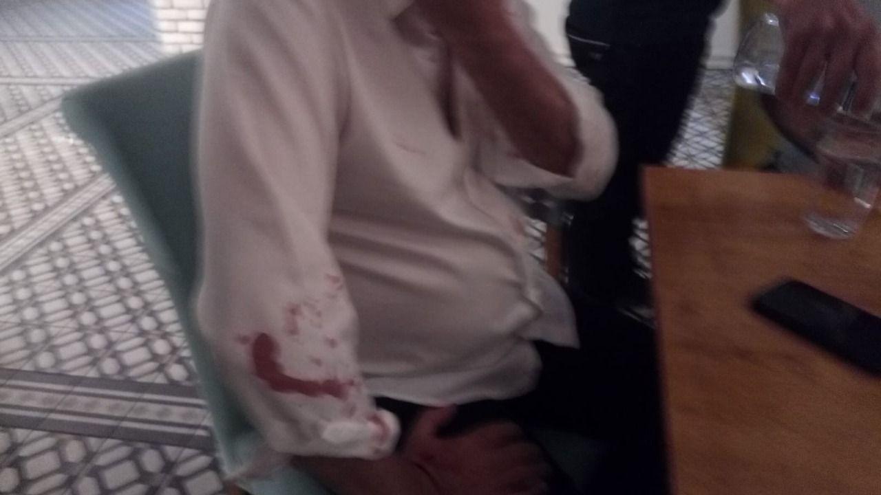 CHP'li başkana sopalı saldırı