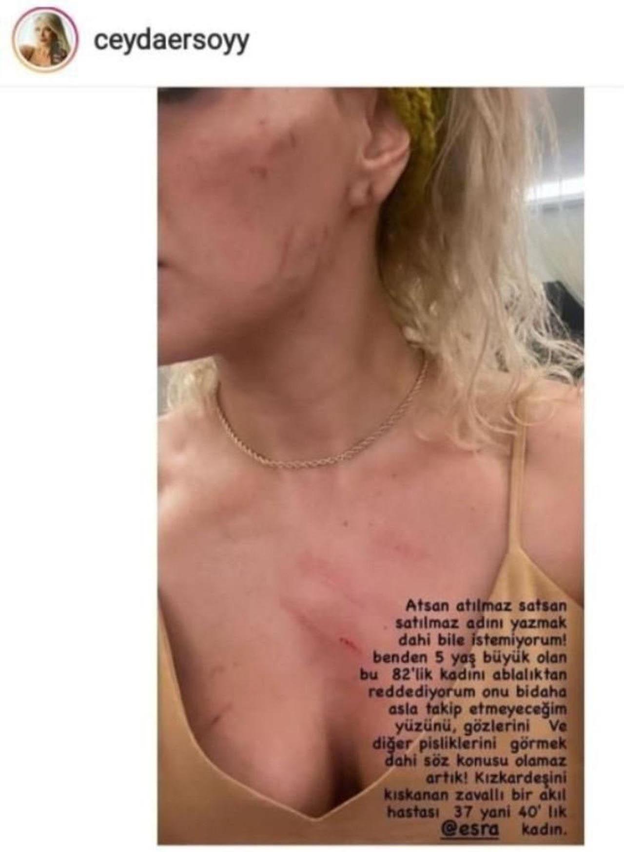 ''Ciciş Ceyda'' bu fotoğrafla duyurdu: ''Ablam beni dövdü'' - Resim: 2