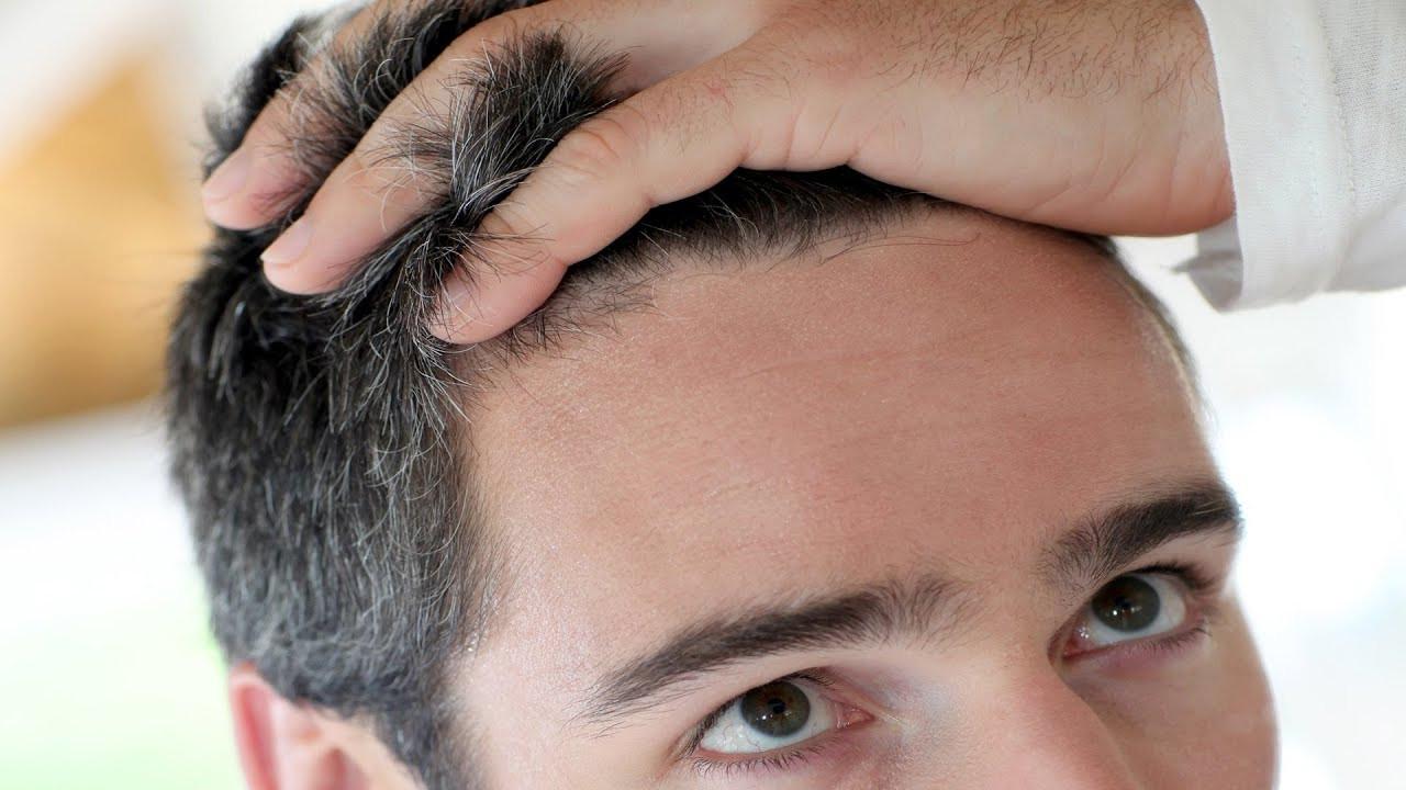 Saç Ektirmede Doğru Adres