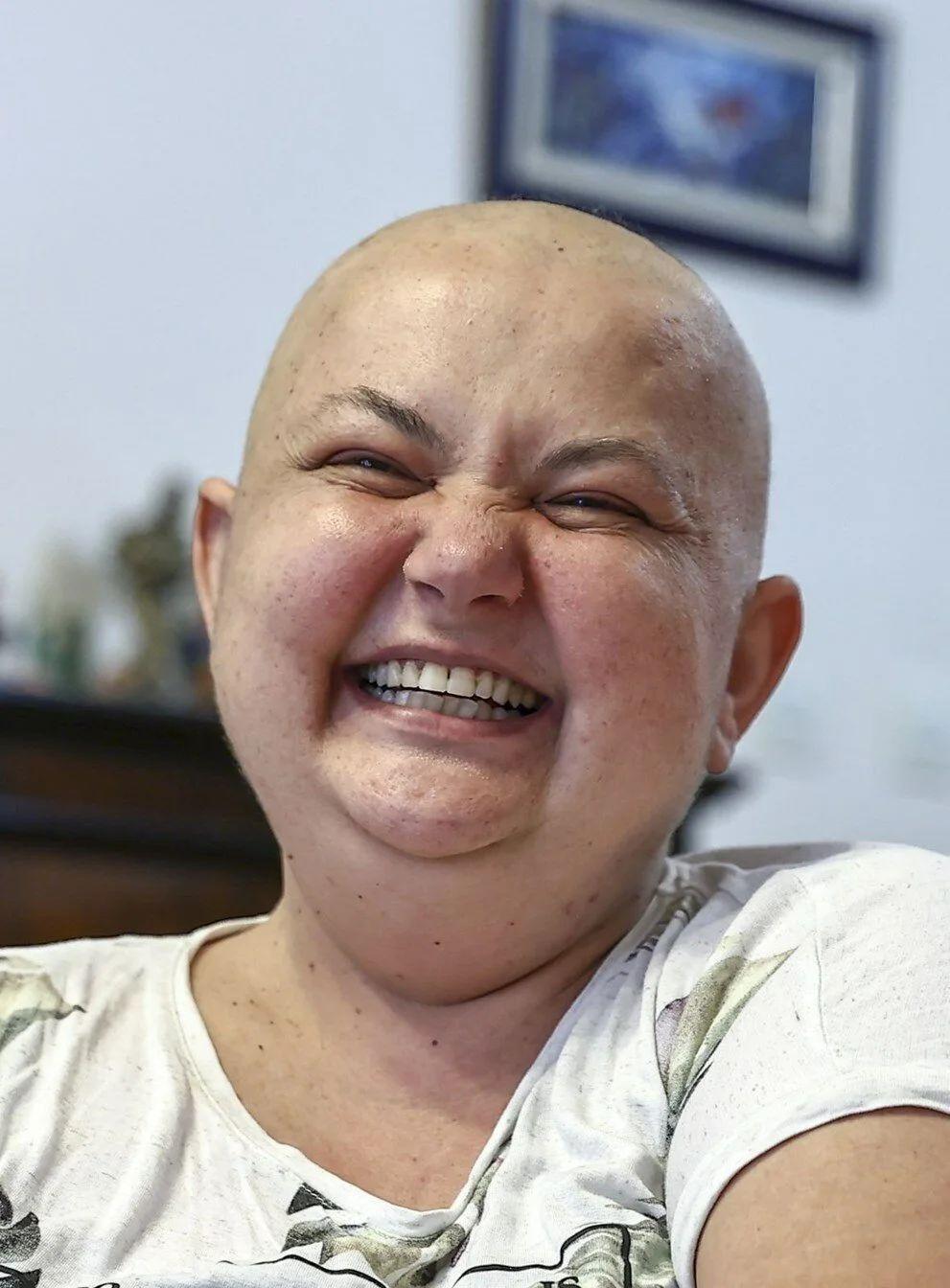 9 kez kanseri yendi - Resim: 1