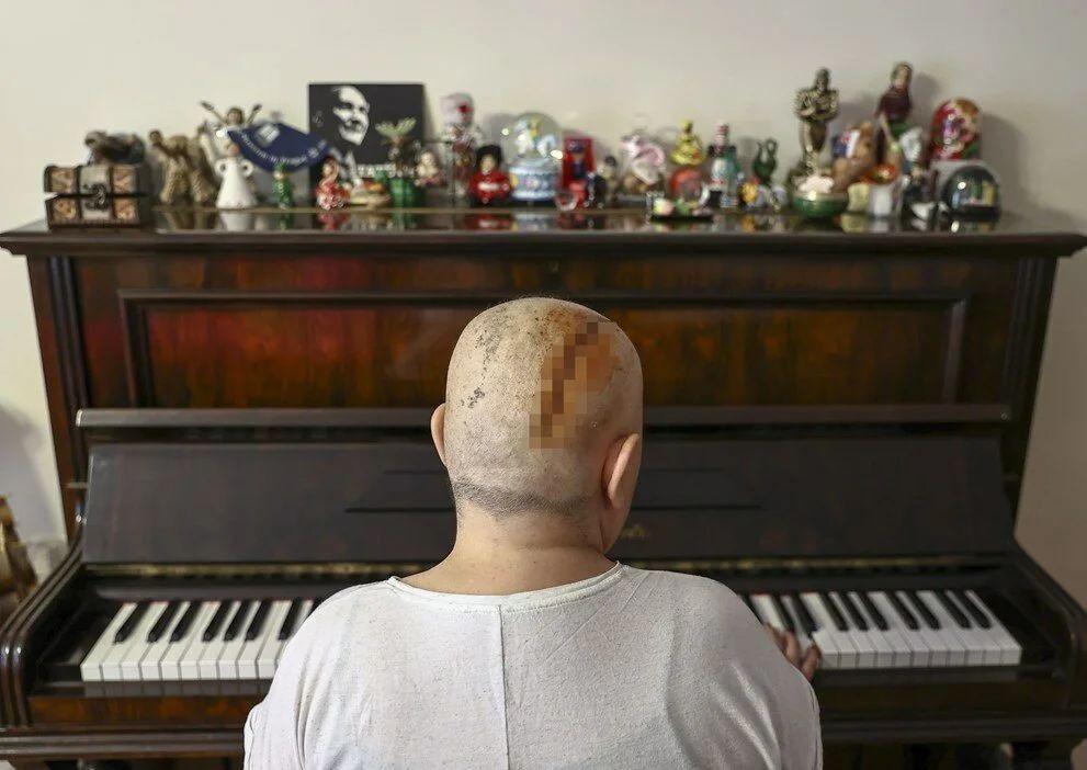 9 kez kanseri yendi - Resim: 4