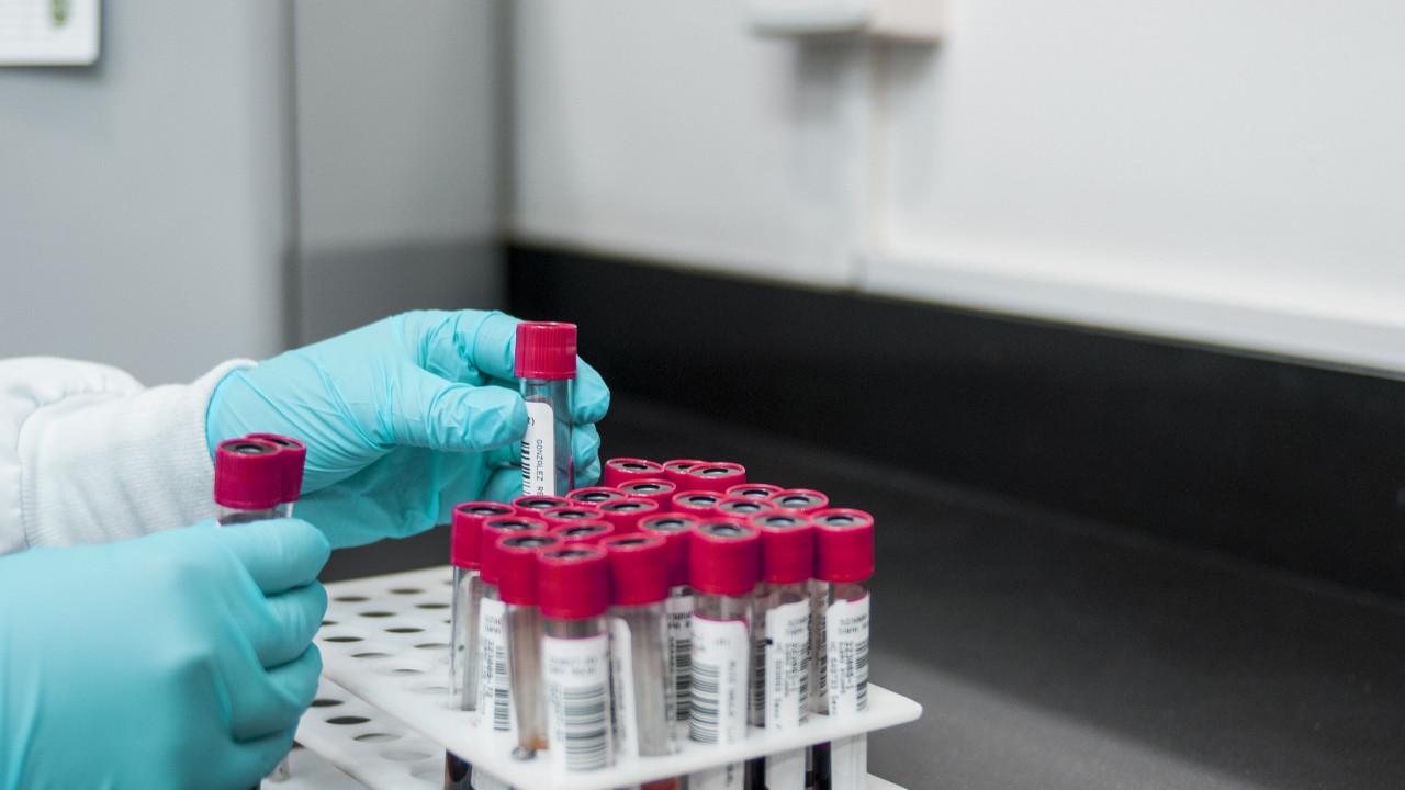 Haberler kötü! Bildiğimiz koronavirüsten yüzde 60 daha bulaşıcı