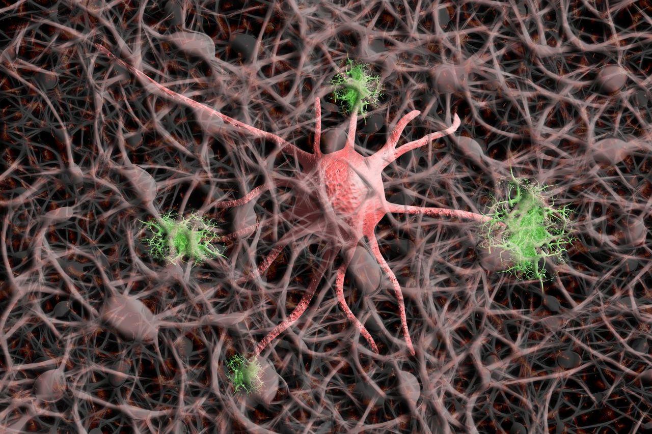 Bilim insanları Alzheimer'ı durdurmanın yöntemi bulundu - Resim: 2