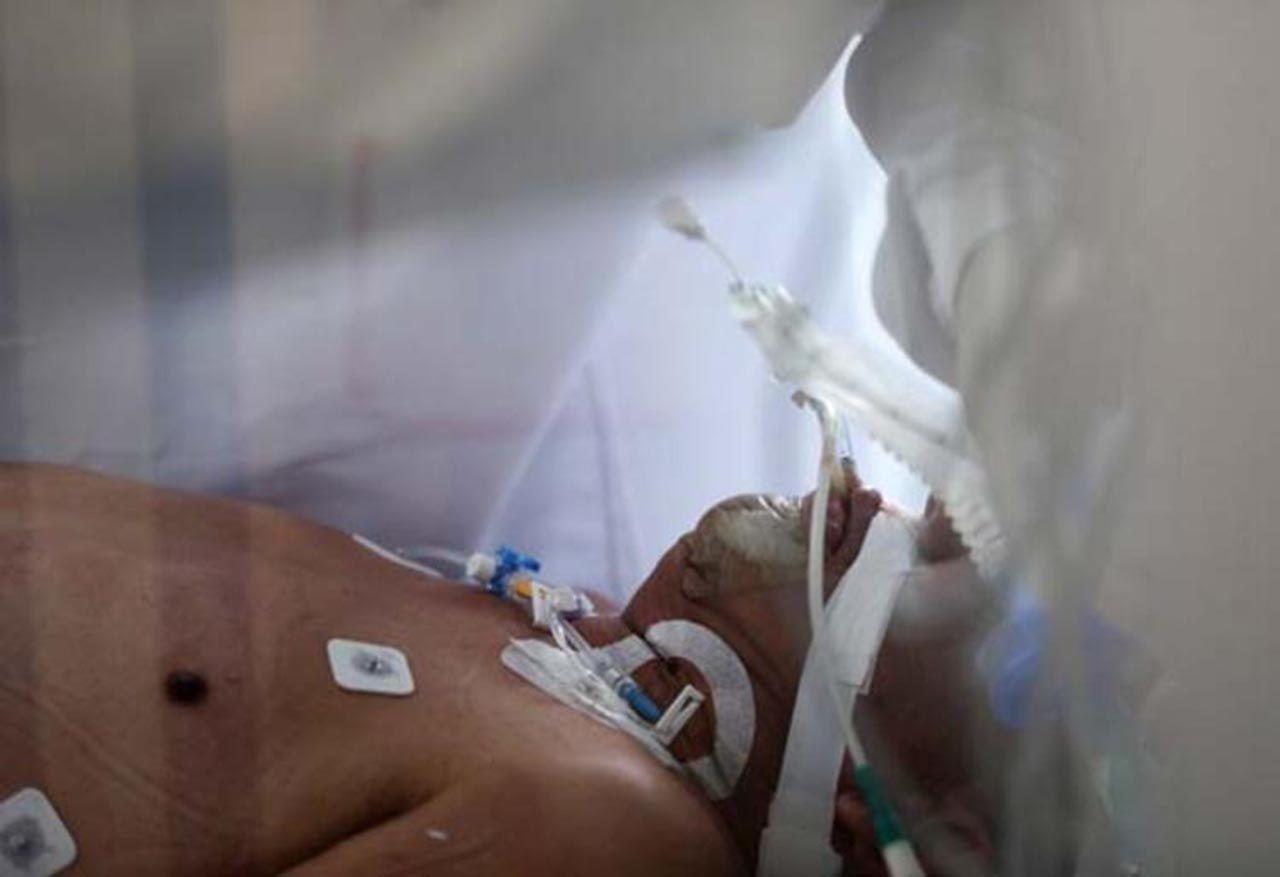 Yeni bir salgın başladı: İlk kez insandan insana bulaştı, tedavisi yok - Resim: 4