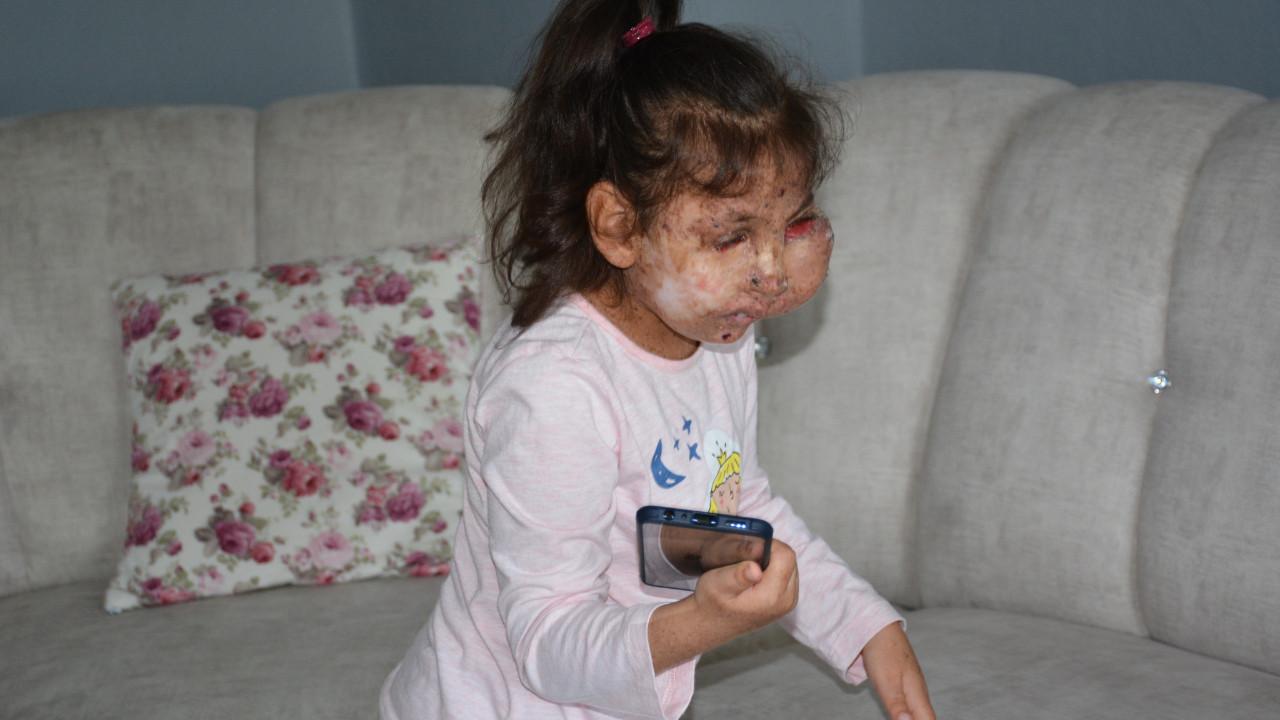 Minik Sahra kendisini ameliyat edecek doktor bulamıyor