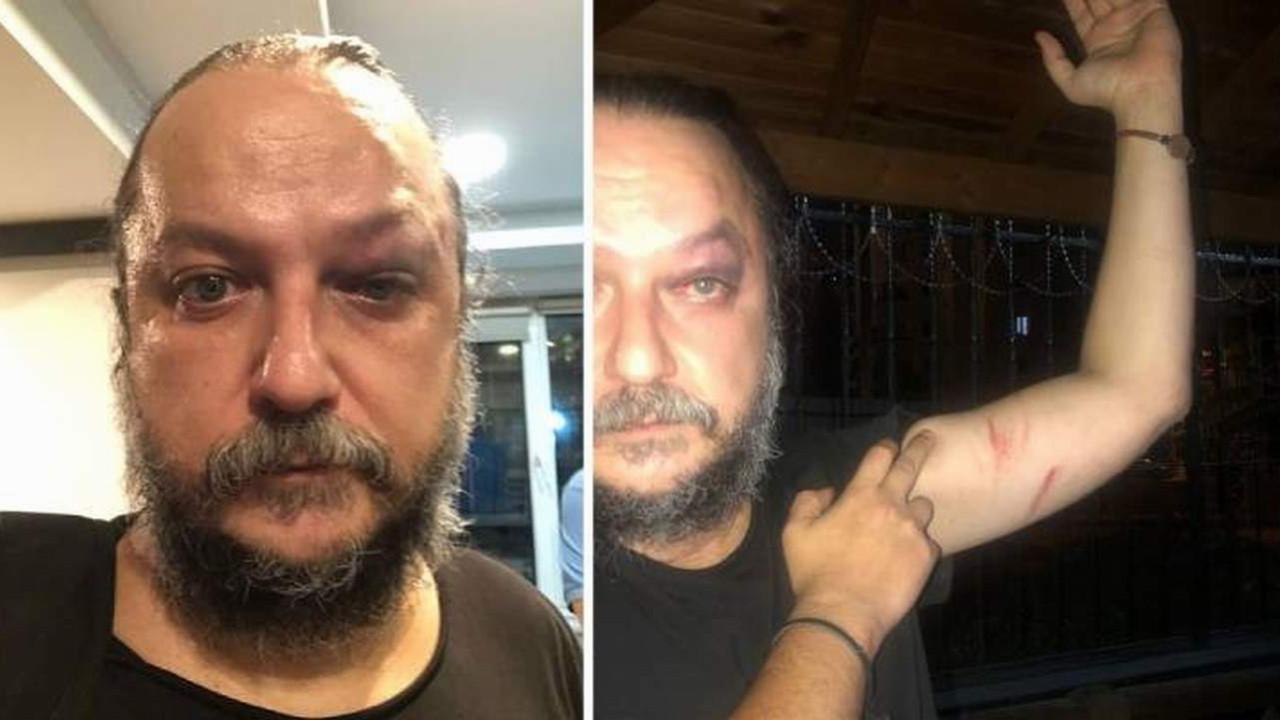 Sanatçı Güvenç Dağüstün'e saldırı