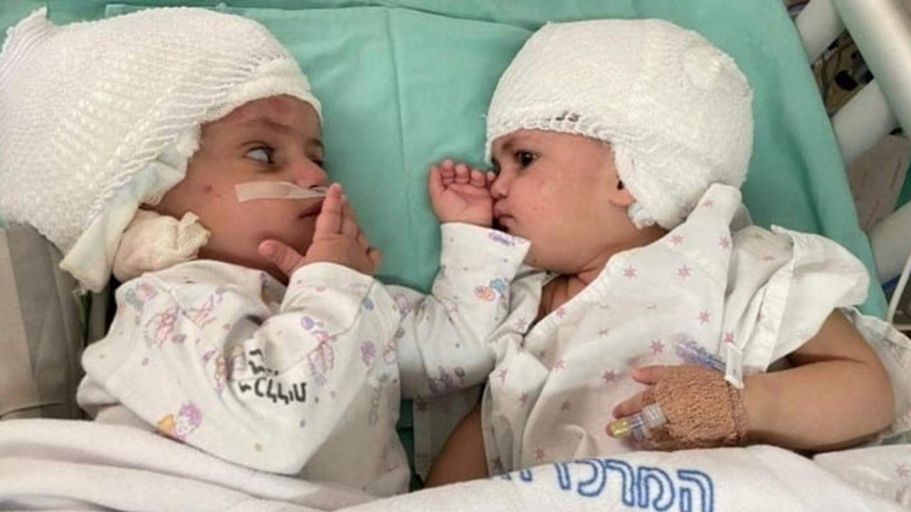 Yapışık ikizler 12 saatlik ameliyatla ayrıldı