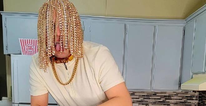 Ünlü rapçi kafasına ameliyatla kanca taktırıp kafasını altınla donattı - Resim: 1