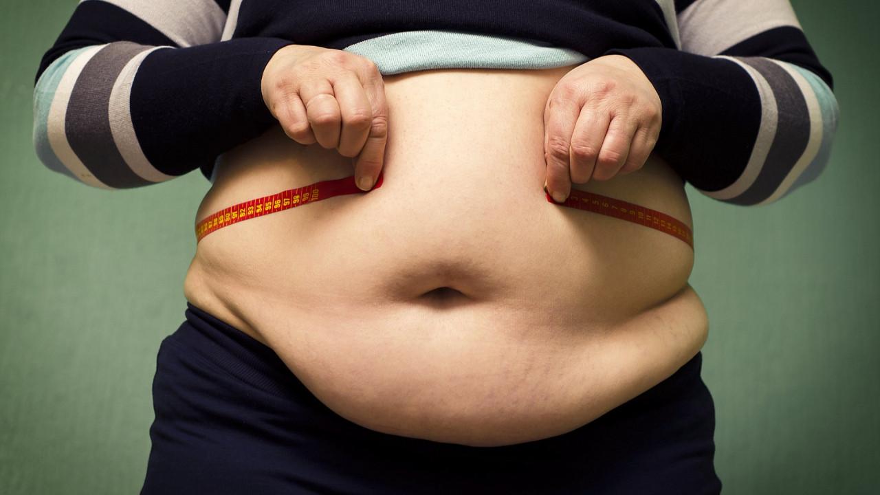 Obezitenin temel nedeni meğer çok yemek değilmiş