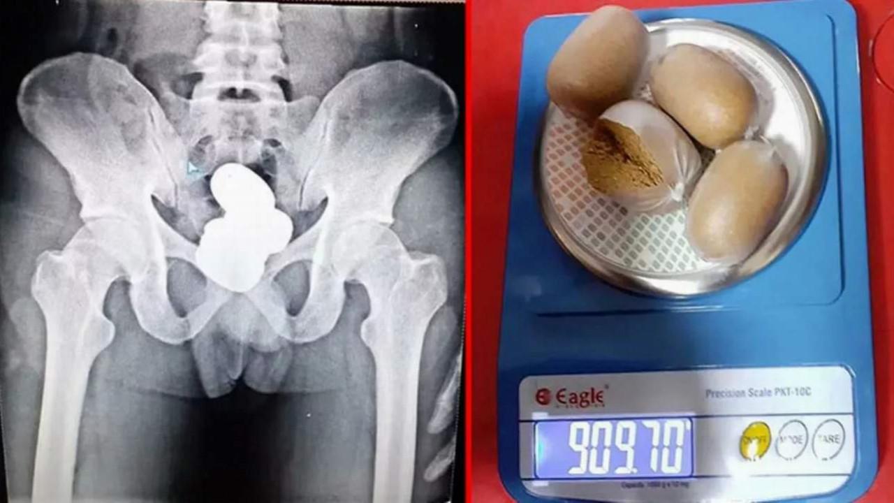 Havalimanında şoke eden olay! ''Şeyinden'' 1 kilo altın çıktı!