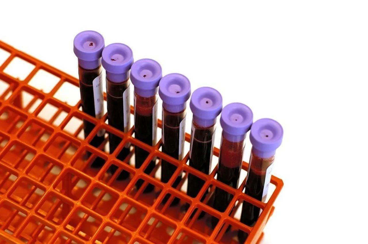 En sağlıklı kan grubu belli oldu: ''Hastalık riski daha düşük'' - Resim: 2