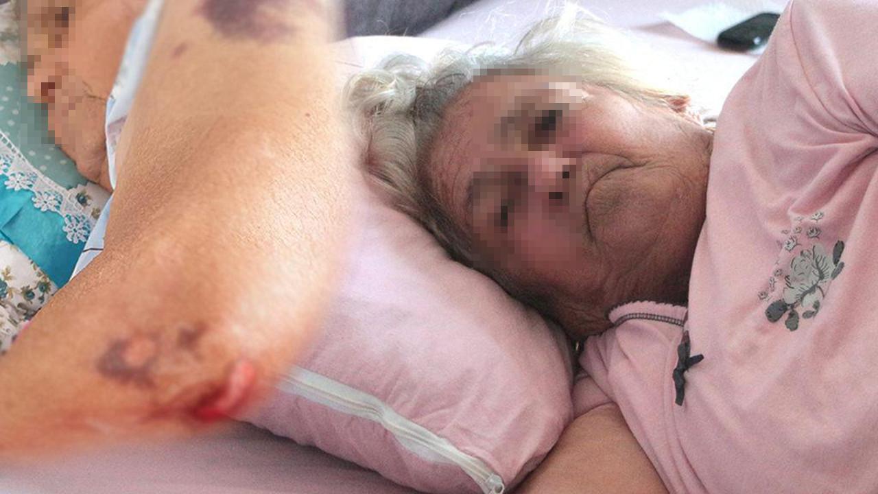 Özel hastanede skandal iddia: ''Hastaneye yürüyerek girdim, sakat çıktım''