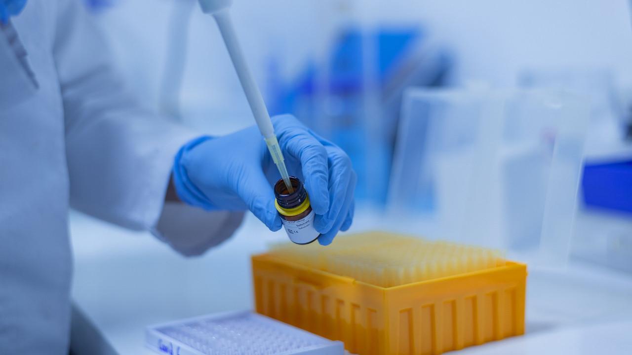 Bu araştırma ortalığı karıştıracak: Koronavirüs cinsiyeti de etkiliyor!