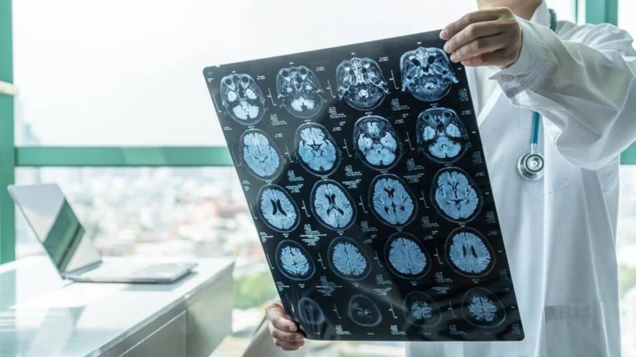Bilim insanları, demans ve felce karşı mini beyin geliştirdi