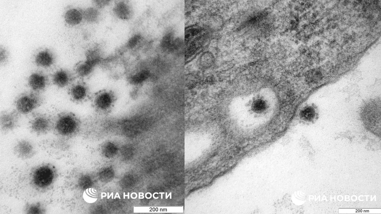 Koronavirüsün delta varyantı ilk kez görüntülendi