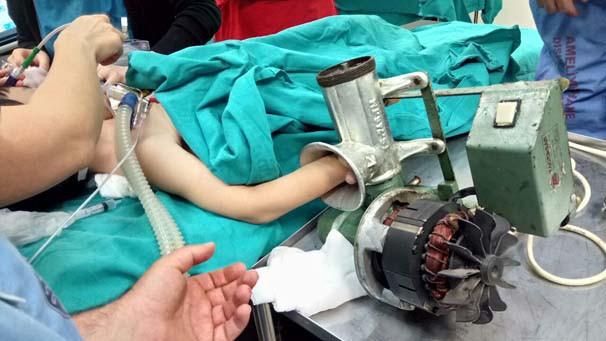 Çocuğun eli kıyma makinesine sıkıştı